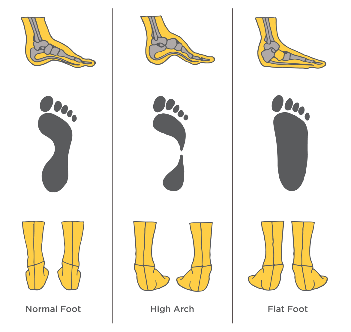 Ogden Clinic Foot Diagram.png