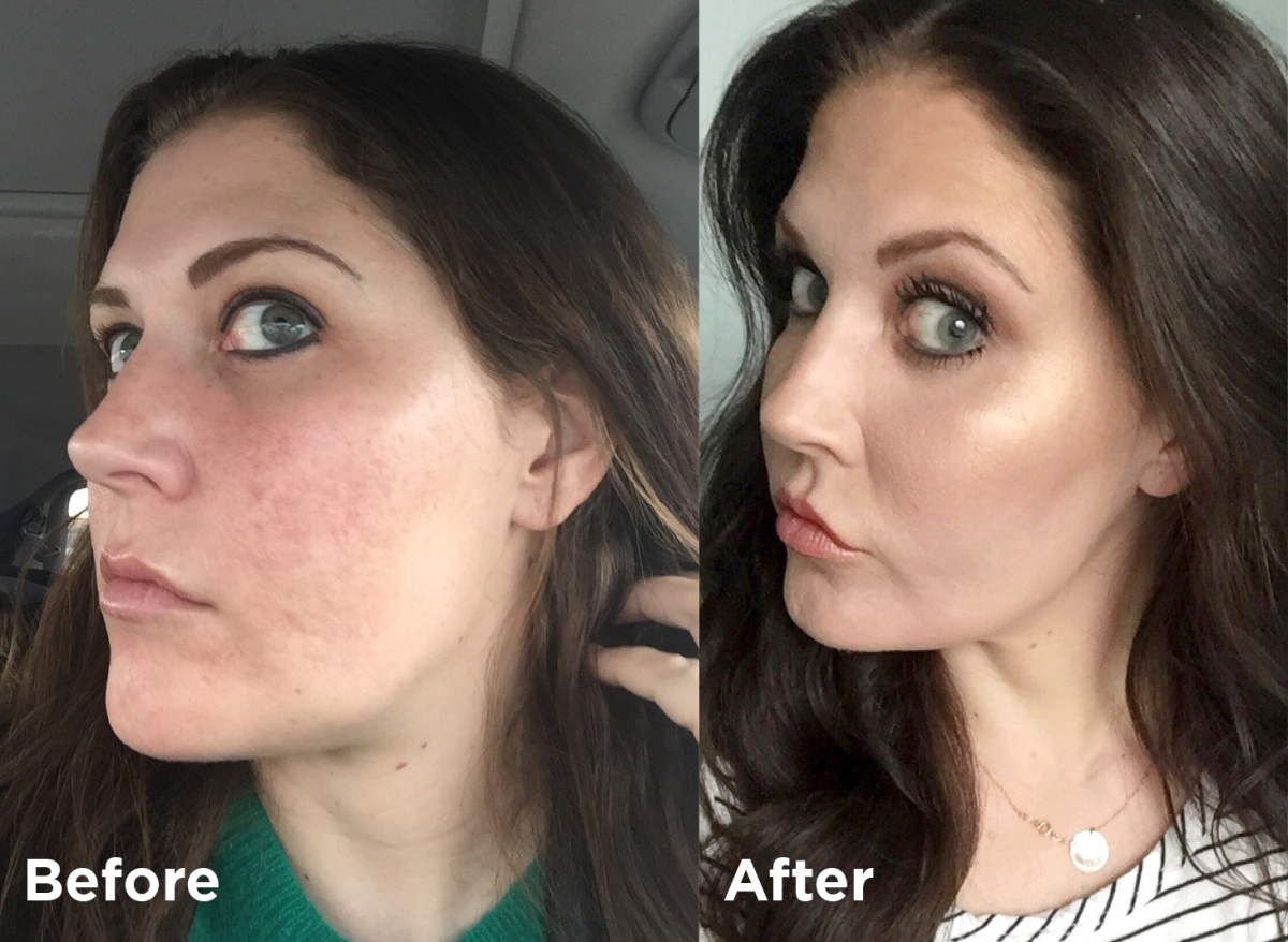 I Nixed My Acne Scars for Good with Fractional CO2 Laser Resurfacing